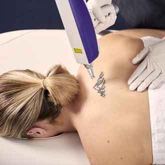 Tattoo Removal in Taree